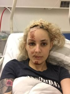Go freediving - gemma smith at hospital 2 - gemmas accident