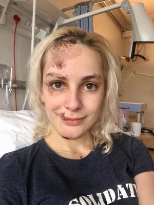 Go freediving - gemma smith at hospital - gemmas accident