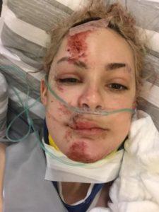 go freediving - facial1 - gemmas accident